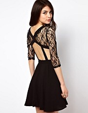 Rare Lace Open Back Skater Dress