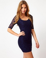 Rare Contrast Lace Dress